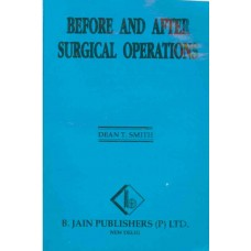 Before and After Surgical Operations